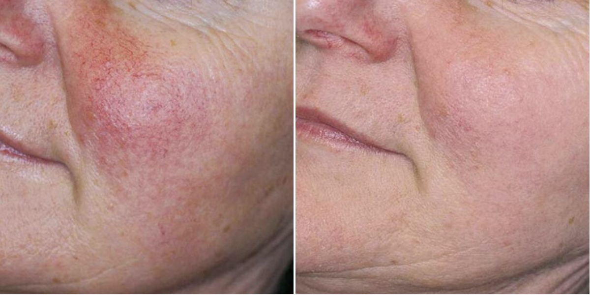 Two photos showing comparatively showing the results of IPL skin revitalization treatment for rosacea on a female patient .