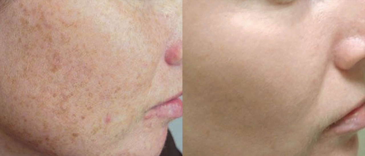 Two photos showing comparatively showing the results of IPL skin revitalization treatment for sun damaged facial skin on a female patient.