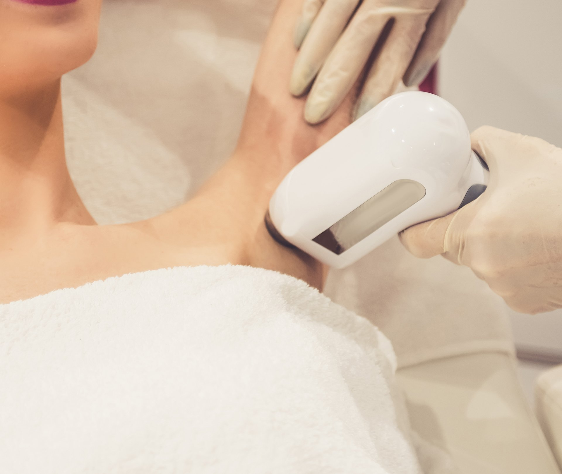 Photo of a female patient receiving laser hair removal treatment from a skincare professional on her underarm.