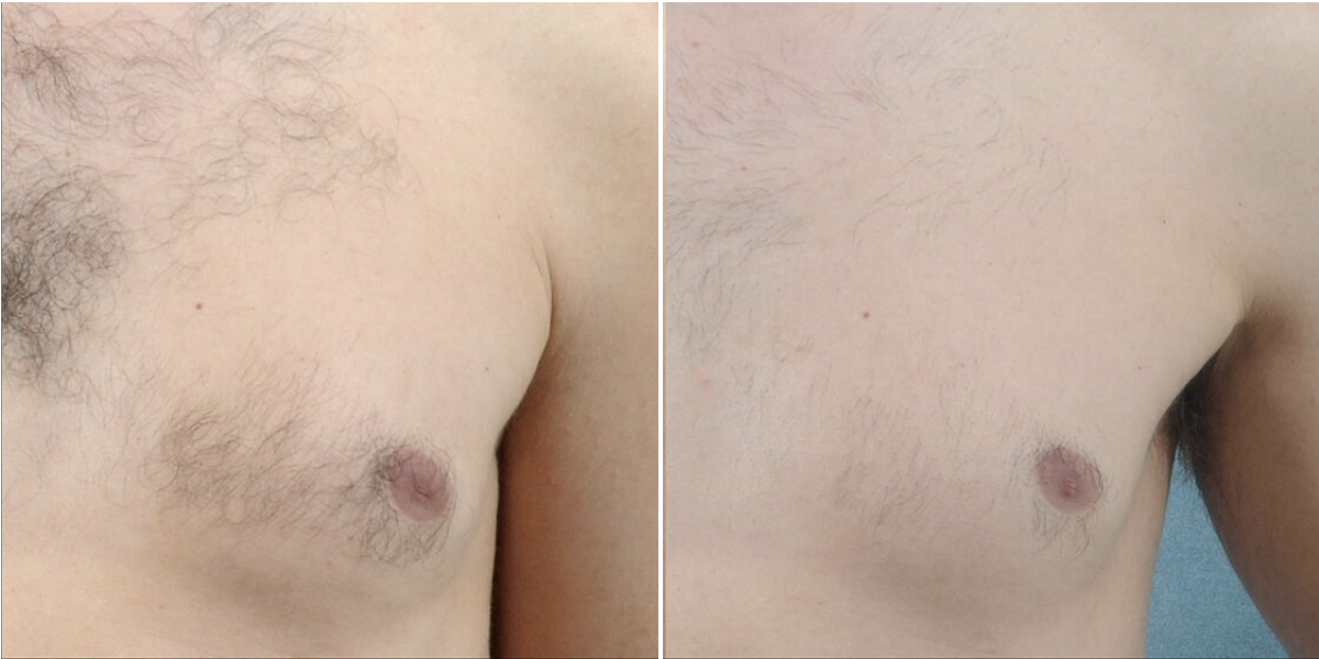 Photos showing effective results of laser hair removal on chest of male patient.