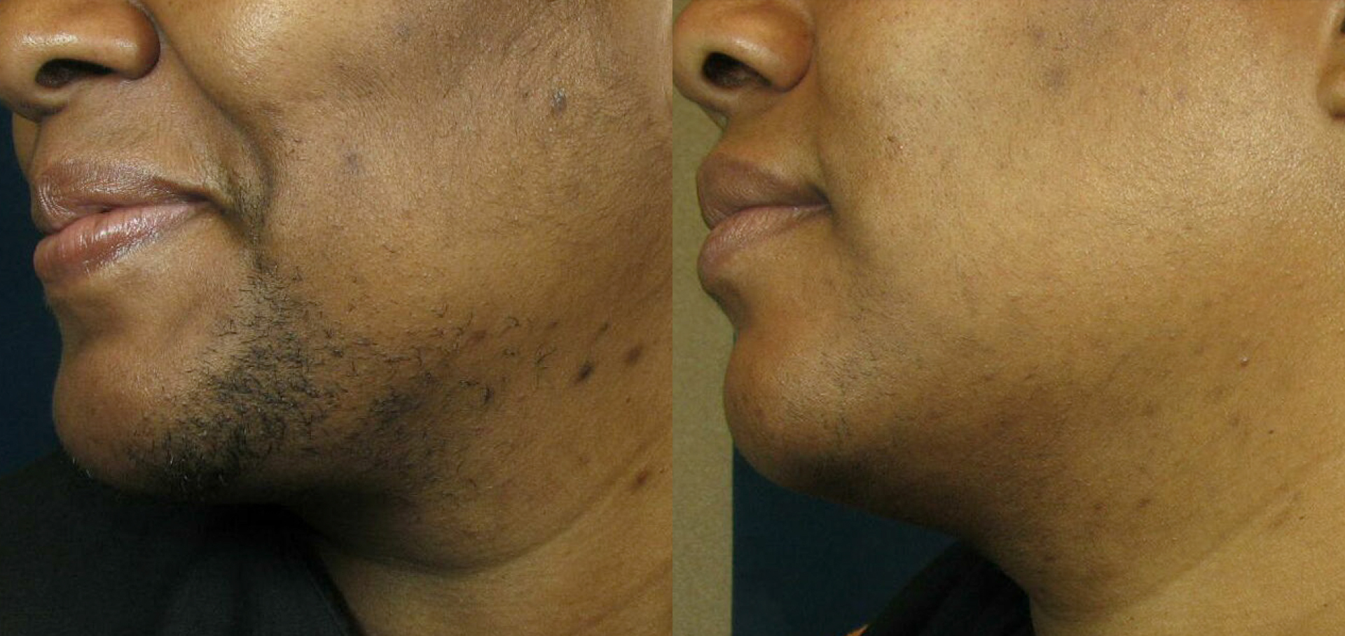 Photos showing effective results of laser hair removal on chin of female patient.