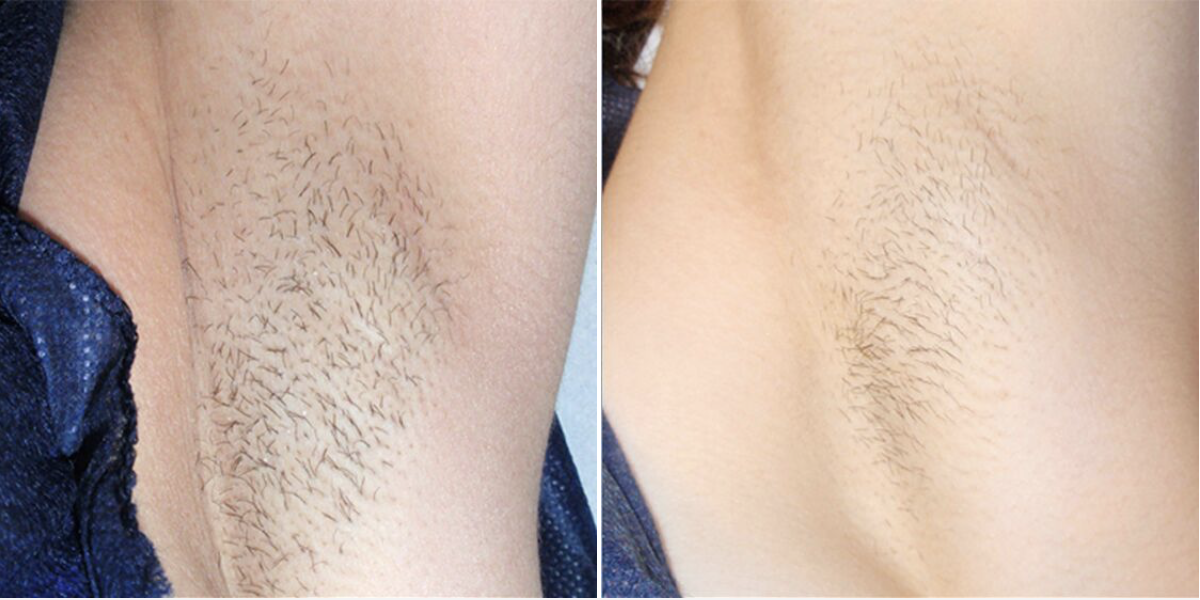 Photos showing effective results of laser hair removal on underarm of female patient.